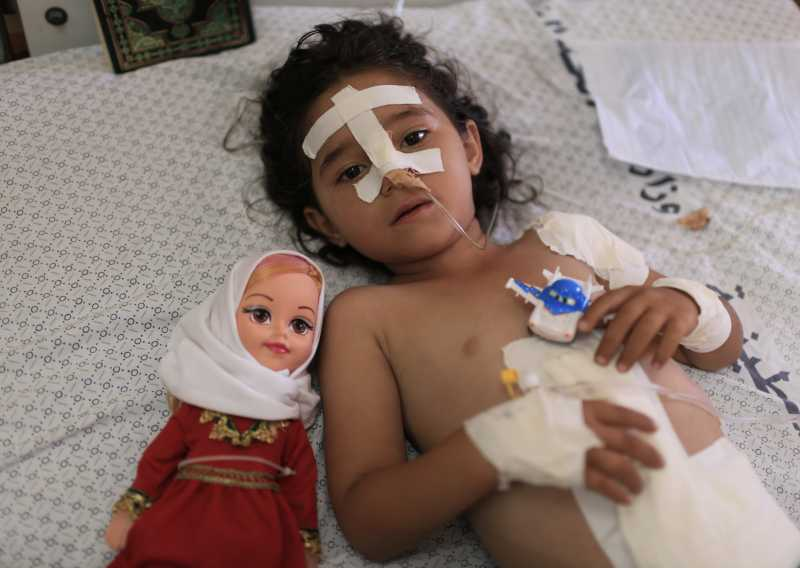 Shayma al-Masri, a four-year-old Palestinian girl is treated at a hospital in Gaza