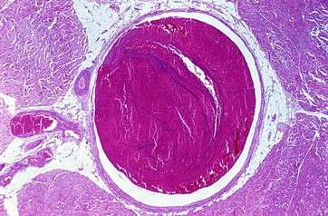 Venous thrombosis by .