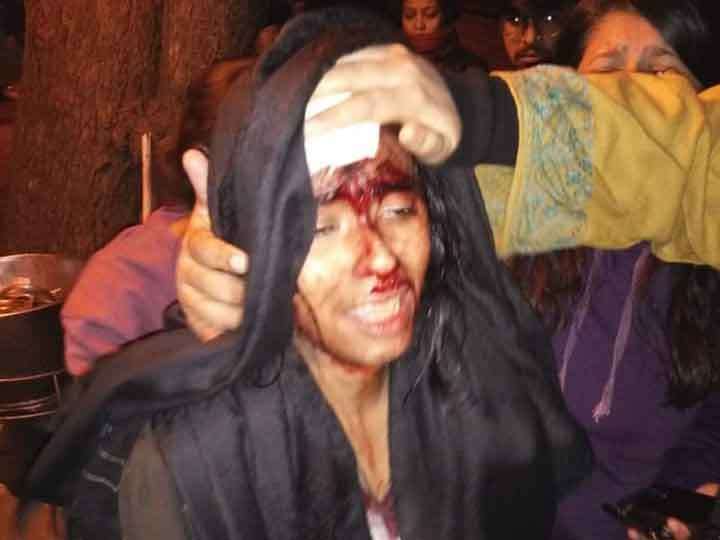 New Delhi: A girl student at JNU was hit over the eye with a rod after clashes erupted between groups of students at JNU campus in New Delhi on Jan 5, 2020. (Photo: IANS) by .