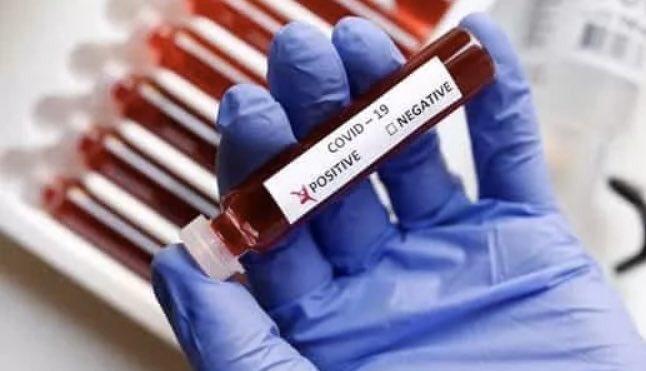 coronavirus. by .